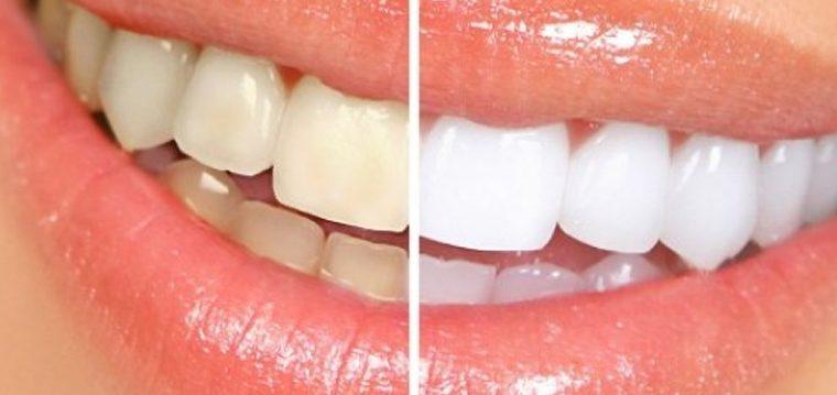 Como mejorar tu higiene dental de forma natural