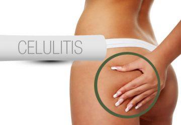 Que es y como reducir la celulitis