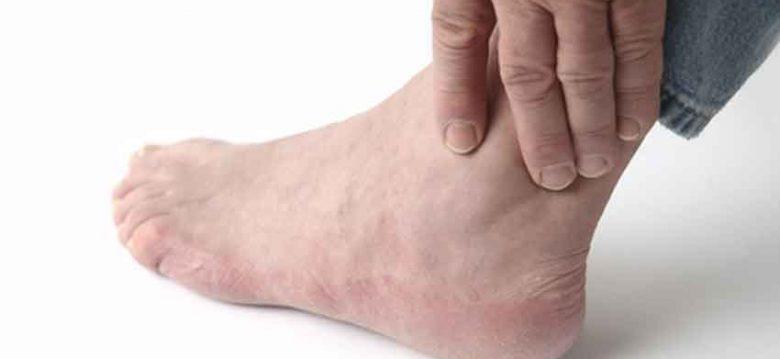 Ácido úrico una enfermedad común en hombres